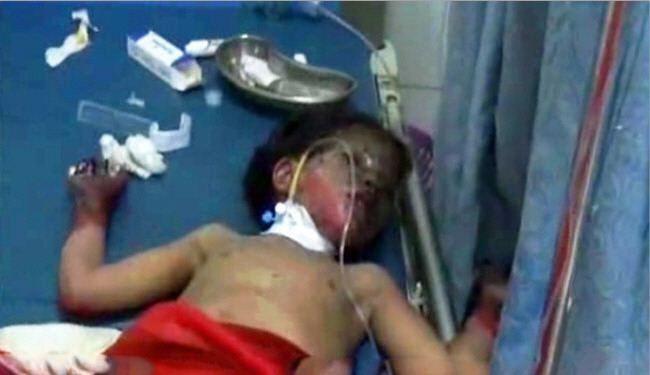 فيديو+ صور/ ضحايا القصف السعودي لليمن بينهم أطفال